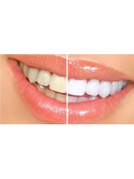Visita Odontoiatrica + Pulizia Denti + Smacchiamento
